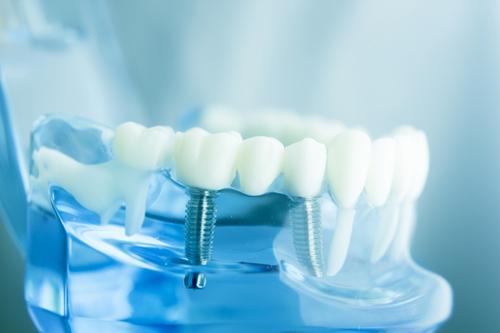 Zahnärzte Neuötting Implantate