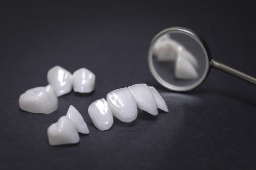 ästhetische Zahnheilkunde, Zahnärzte Neuötting