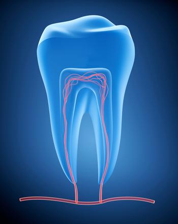 Endodontische Behandlung bei Zahnärzte Neuötting