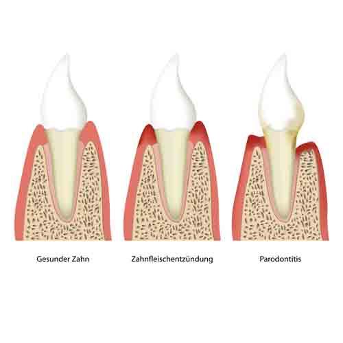 Parodontose Behandlung, Zahnärzte Neuötting