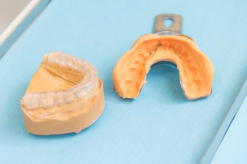 Schienenbehandlung bei Zahnärzte Neuötting